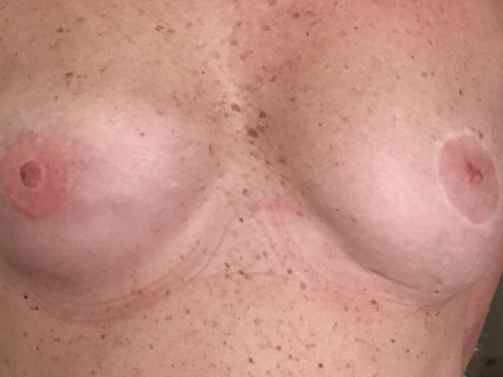 Dermopigmentation paramédicale Wavre